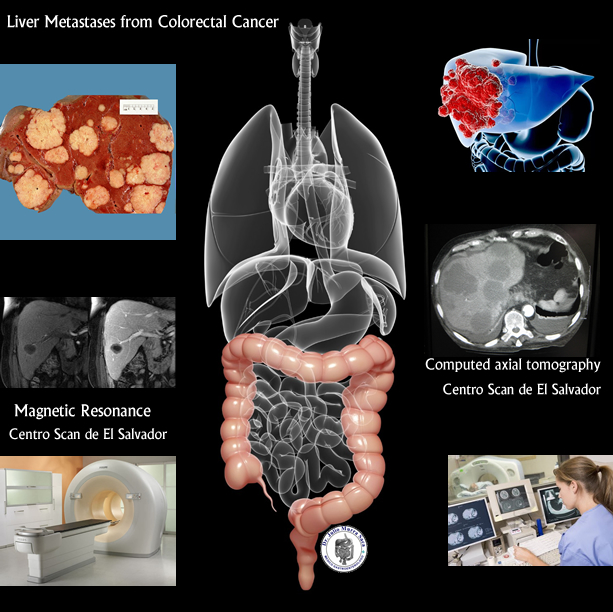 liver metastases from colorectal cancer