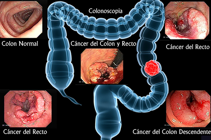 Cancer del colon y recto, Colonoscopia El Salvador